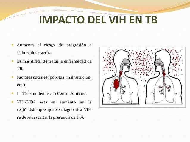 VIH y tuberculosis