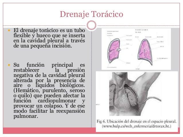 DRENAJE PLEURAL PDF