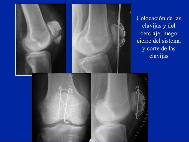 04 fracturas de la rotula