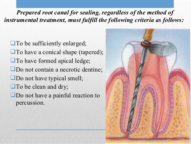 Endodontics Anatomy Of Root Canals Instruments