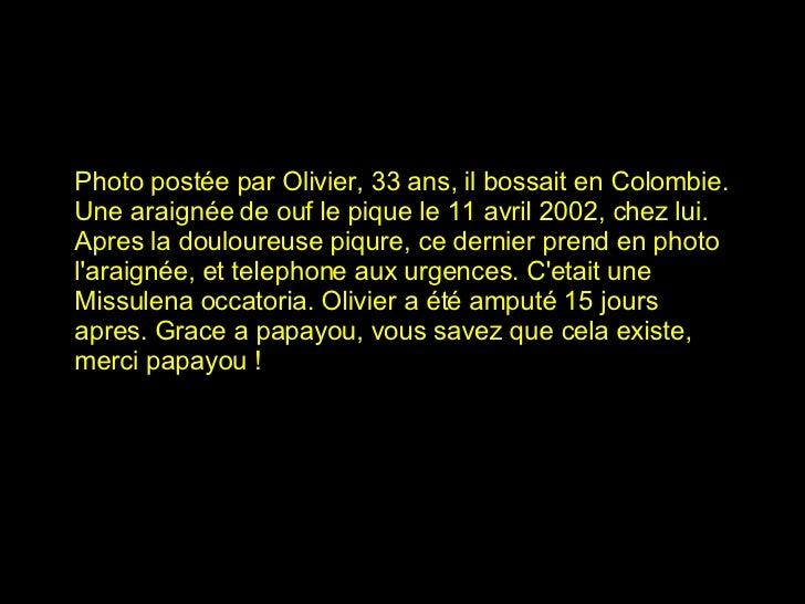 Photo postée par Olivier, 33 ans, il bossait en Colombie. Une araignée de ouf le pique le 11 avril 2002, chez lui. Apres l...