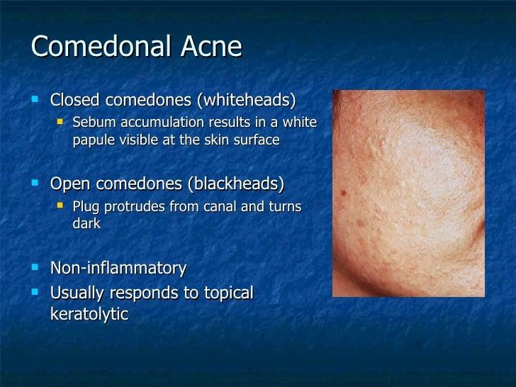 Comedon acne