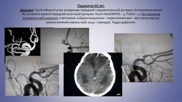 гипоплазия сегмента а1 левой пма