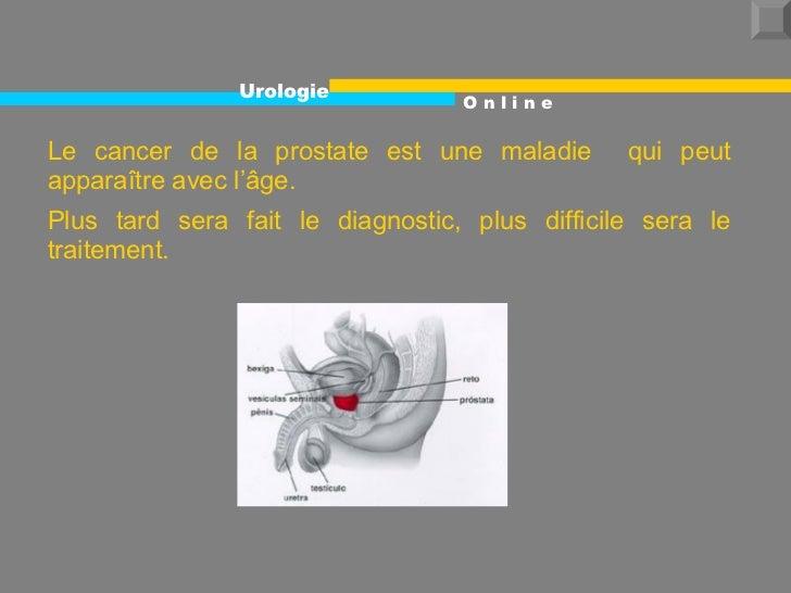 Le cancer de la prostate est une maladie  qui peut apparaître avec l'âge. Plus tard sera fait le diagnostic, plus difficil...