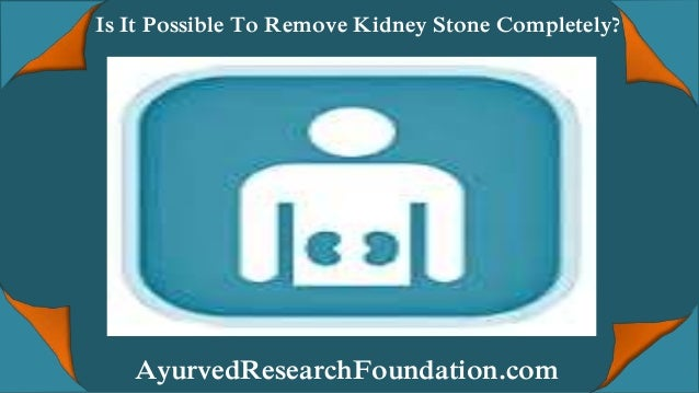 Is It Possible To Remove Kidney Stone Completely? AyurvedResearchFoundation.com