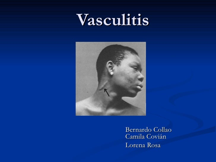 Vasculitis Bernardo Collao Camila Covián Lorena Rosa