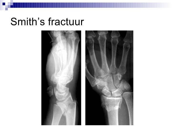 smith fractuur