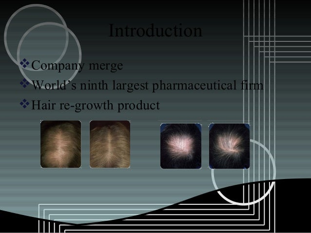 pharmacia and upjohn inc rogaine hair regrowth treatment Factual summary: company profile: pharmacia & upjohn, inc was created with the merger of pharmacia ab of sweden and the upjohn company of us in 1995 pharmaceutical products account for 90% of company sales almost 70% of company sales are made outside usa.