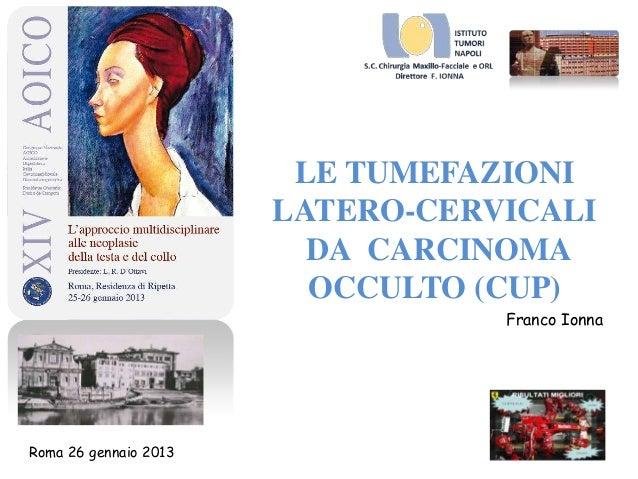 LE TUMEFAZIONILATERO-CERVICALIDA CARCINOMAOCCULTO (CUP)Franco IonnaRoma 26 gennaio 2013