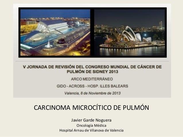 CARCINOMA MICROCÍTICO DE PULMÓN Javier Garde Noguera Oncología Médica Hospital Arnau de Vilanova de Valencia