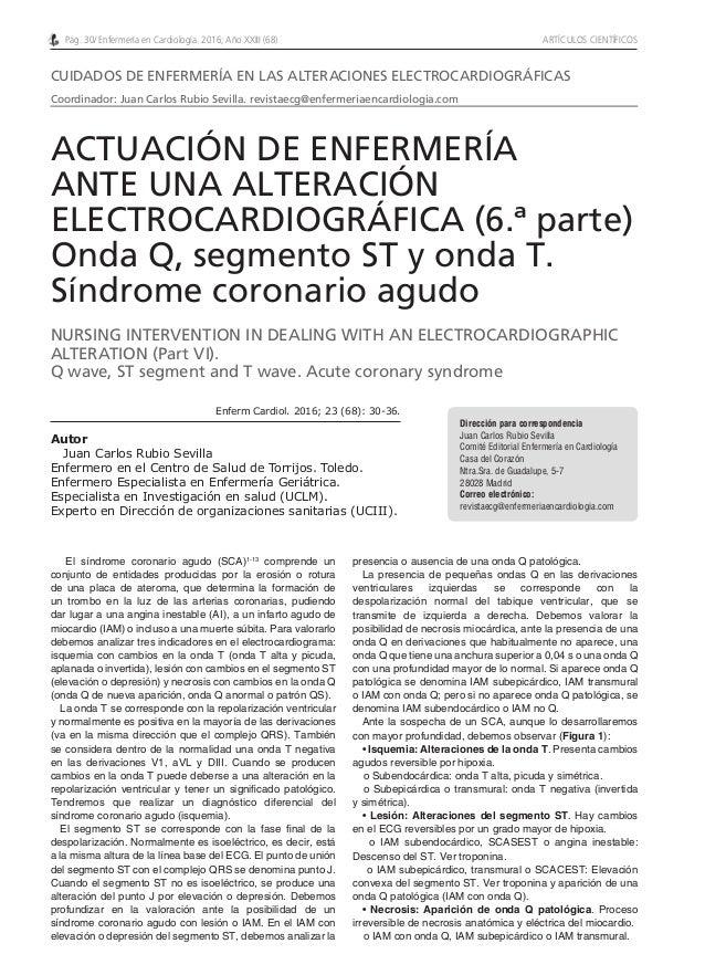 Pág. 30/ Enfermería en Cardiología. 2016; Año XXIII (68) ARTÍCULOS CIENTÍFICOS El síndrome coronario agudo (SCA)1-13 compr...