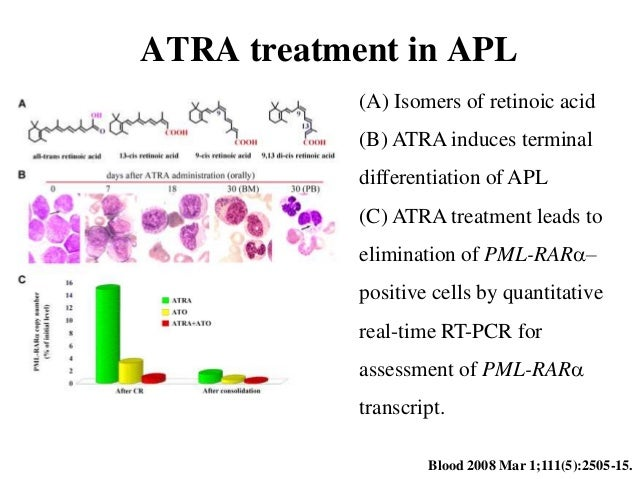 Acute promyelocytic leukemia patient