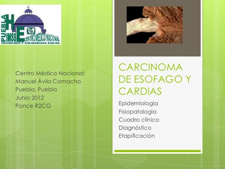 Centro Médico Nacional:                          CARCINOMAManuel Ávila Camacho      DE ESOFAGO YPuebla, PueblaJunio 2012  ...