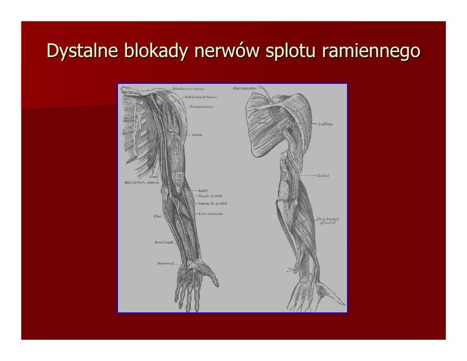 Dystalne blokady nerwów splotu ramiennego