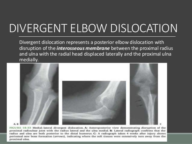 Paediatric Injuries Around The Elbow.