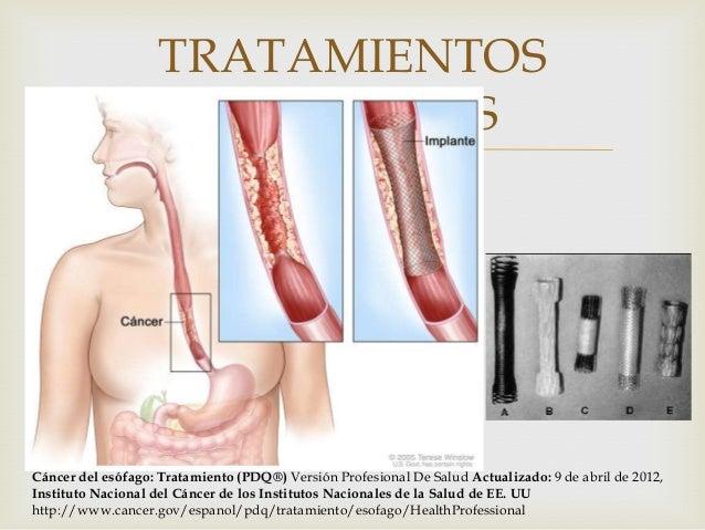 De cancer de esofago - Tratamiento para carcoma ...
