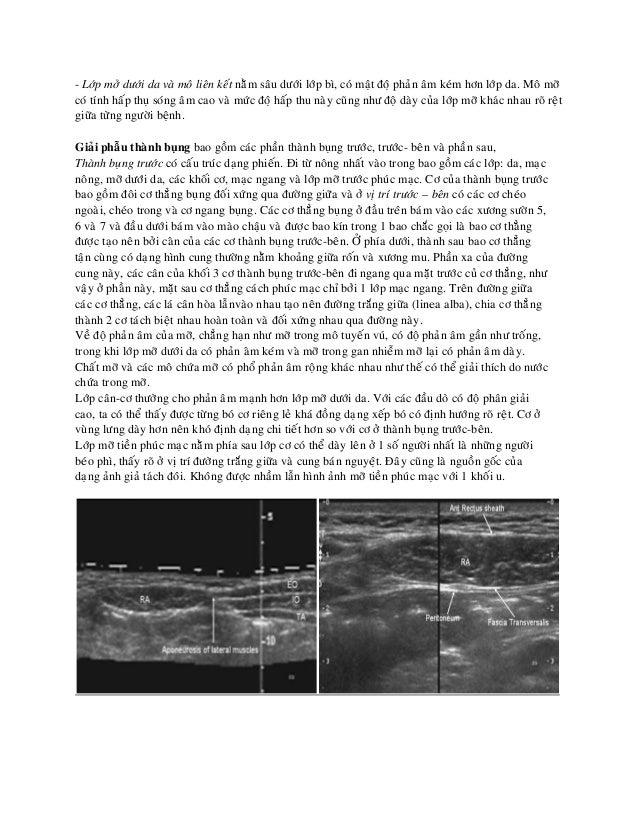 08.siêu âm thành bụng Slide 2