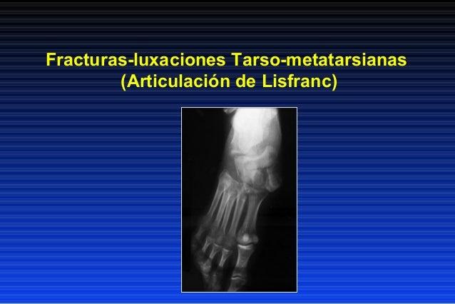 Fracturas-luxaciones Tarso-metatarsianas        (Articulación de Lisfranc)