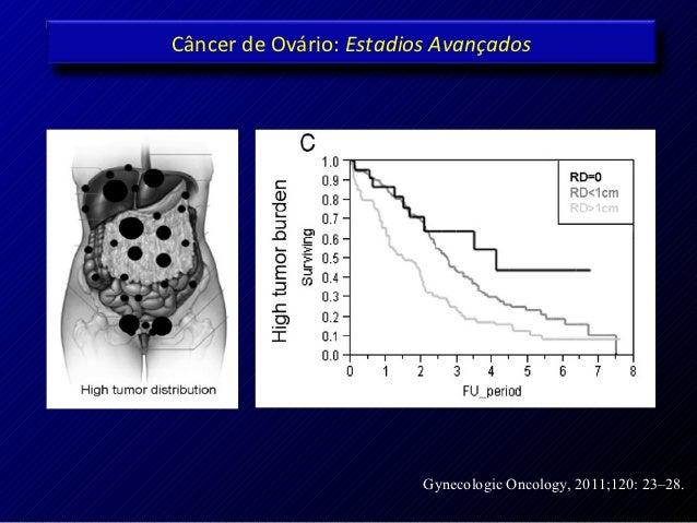 Câncer de Ovário: Estadios Avançados                         Gynecologic Oncology, 2011;120: 23–28.