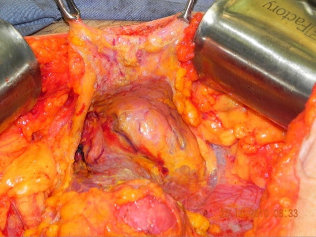 Neoadjuvant Chemotherapy or Primary Surgery in Stage IIIC or IV Ovarian Cancer Neoadjuvant Chemotherapy or Primary Surgery...
