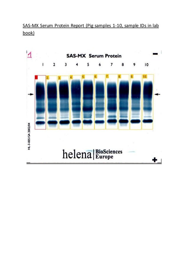 SAS-MX Serum Protein Report (Pig samples 1-10, sample IDs in lab book)