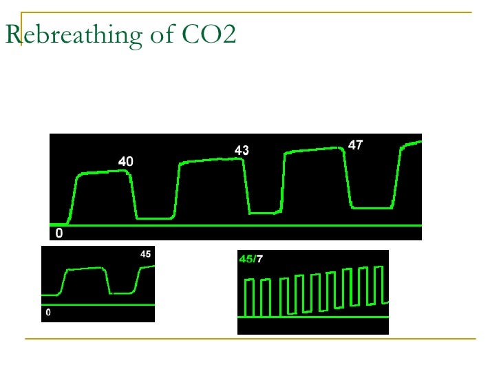 08 capnometry and pulse oximetry