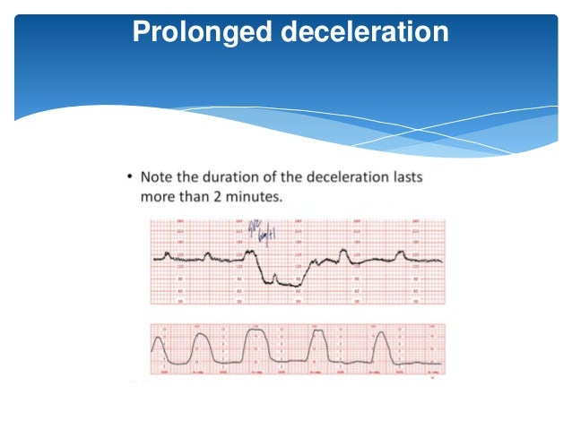 Decelerations defined