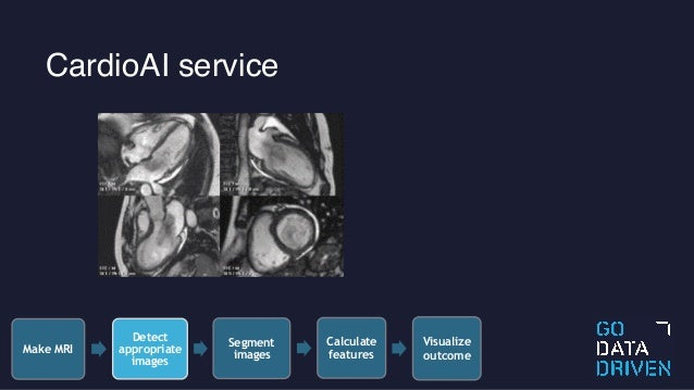 CardioAI: Automated Medical Diagnosis from MRI and Patient Data Using…