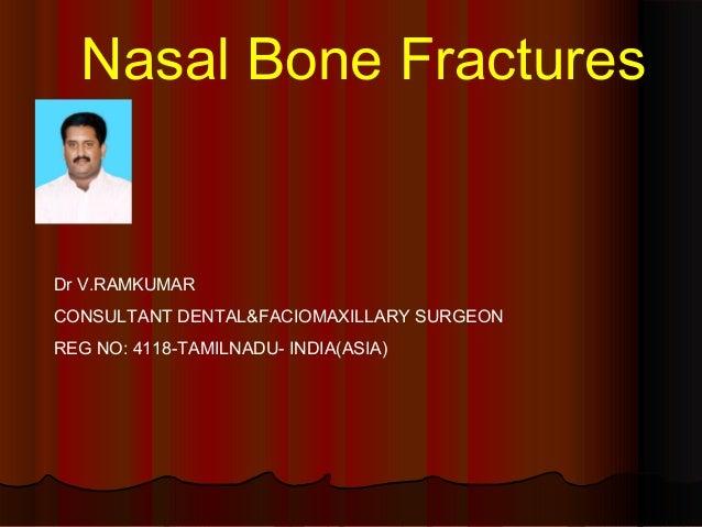 Nasal Bone Fractures  Dr V.RAMKUMAR  CONSULTANT DENTAL&FACIOMAXILLARY SURGEON  REG NO: 4118-TAMILNADU- INDIA(ASIA)
