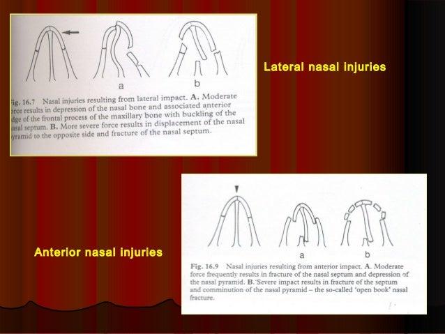 Lateral nasal injuries  Anterior nasal injuries
