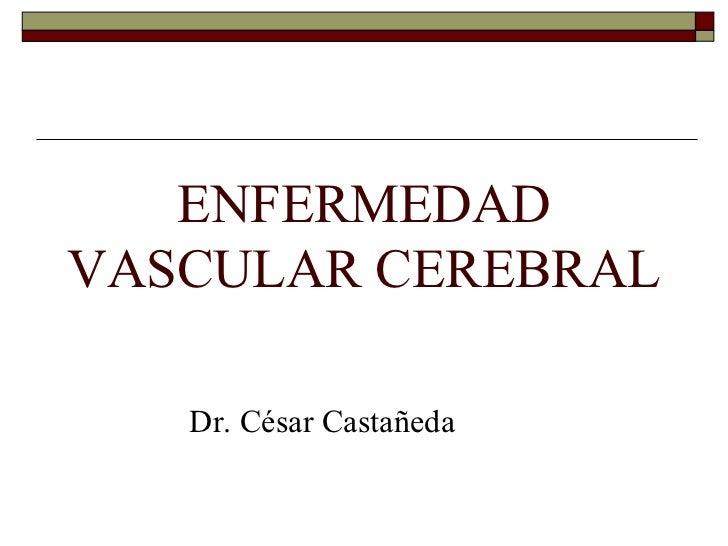 ENFERMEDAD VASCULAR CEREBRAL <ul><li>Dr. César Castañeda </li></ul>
