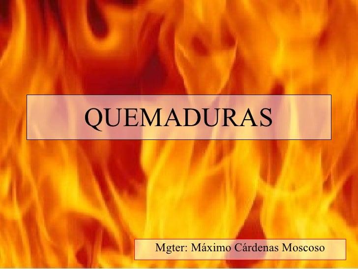 QUEMADURAS       Mgter: Máximo Cárdenas Moscoso