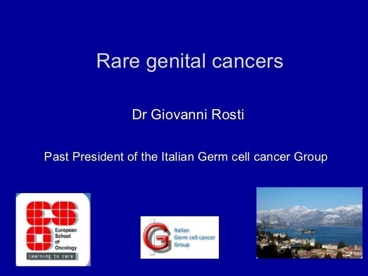 Rare genital cancers  Dr Giovanni Rosti Past President of the Italian Germ cell cancer Group
