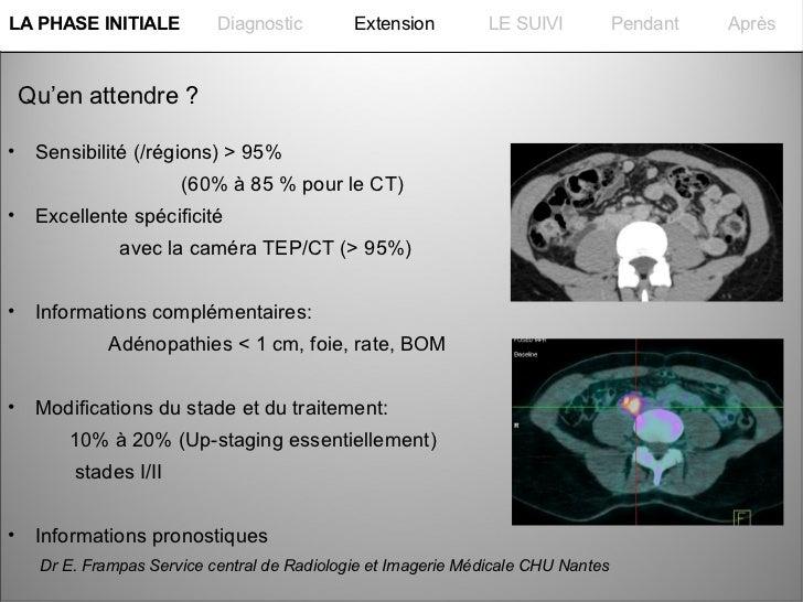 La PHASE INITIALELA PHASE INITIALE         Diagnostic        Extension         LE SUIVI           Pendant   Après Qu'en at...