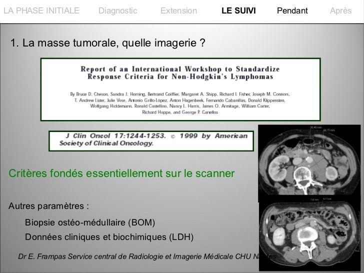 La PHASE INITIALELA PHASE INITIALE         Diagnostic        Extension         LE SUIVI           Pendant   Après 1. La ma...