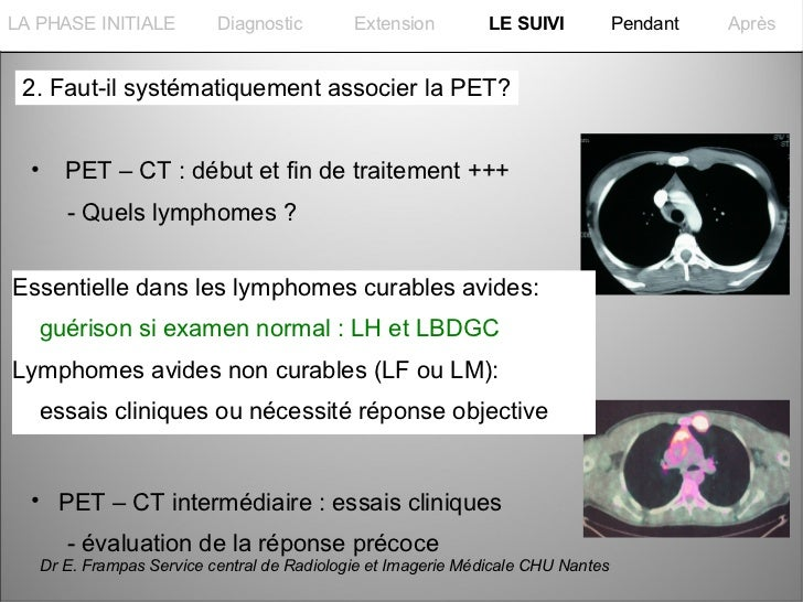 La PHASE INITIALELA PHASE INITIALE            Diagnostic        Extension         LE SUIVI           Pendant   Après 2. Fa...