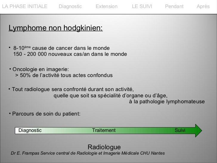 La PHASE INITIALELA PHASE INITIALE         Diagnostic        Extension         LE SUIVI           Pendant    Après  Lympho...