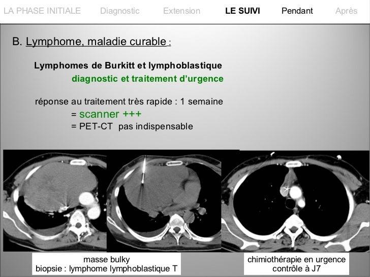 La PHASE INITIALELA PHASE INITIALE      Diagnostic      Extension      LE SUIVI     Pendant       Après B. Lymphome, malad...