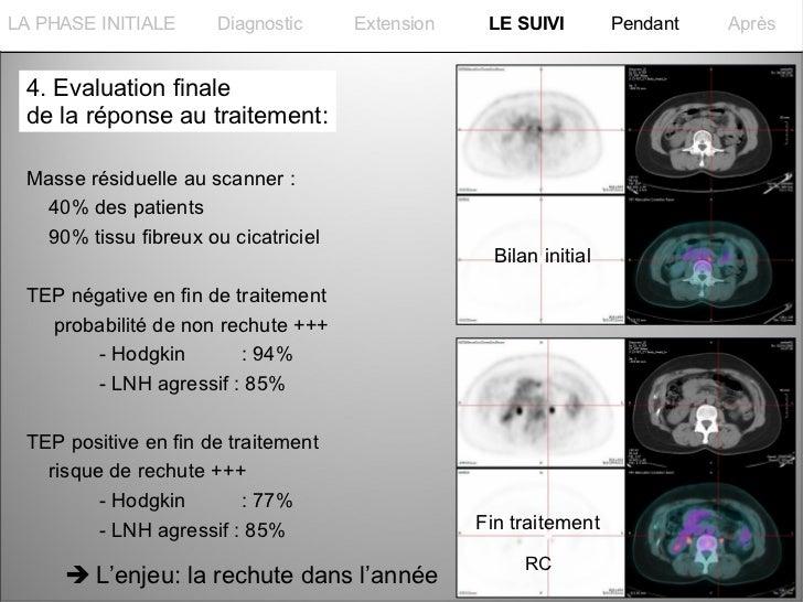La PHASE INITIALELA PHASE INITIALE      Diagnostic     Extension    LE SUIVI         Pendant   Après 4. Evaluation finale ...