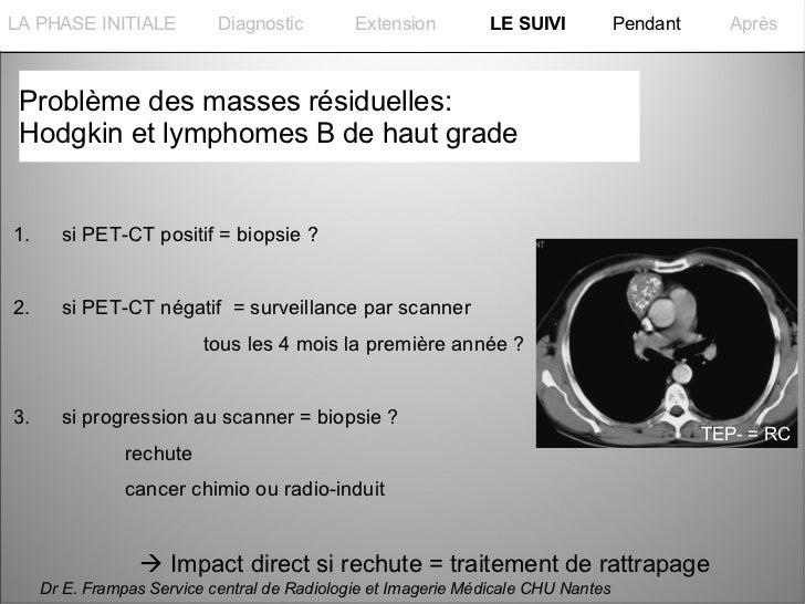 La PHASE INITIALELA PHASE INITIALE           Diagnostic        Extension         LE SUIVI           Pendant     Après Prob...