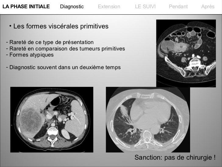 La PHASE INITIALELA PHASE INITIALE    Diagnostic     Extension     LE SUIVI   Pendant     Après  • Les formes viscérales p...