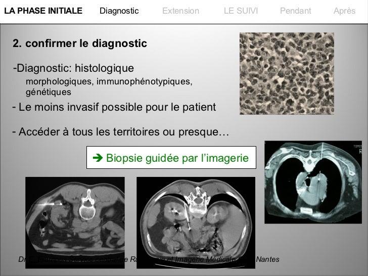 La PHASE INITIALELA PHASE INITIALE         Diagnostic        Extension         LE SUIVI           Pendant   Après  2. conf...