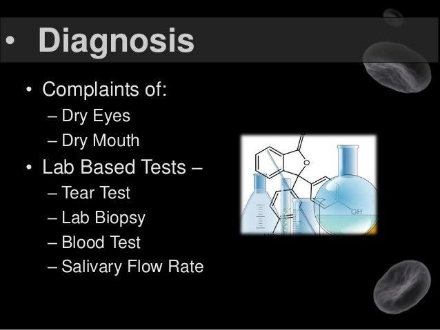 study of sjogrens syndrome presentation