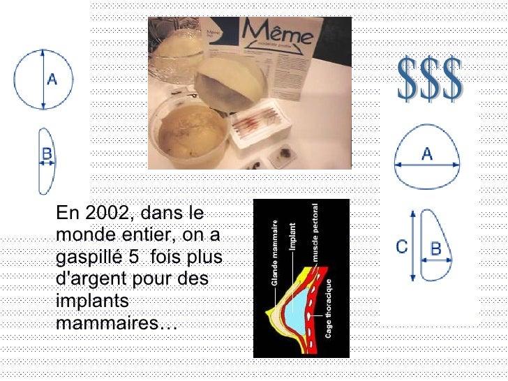 En 2002, dans le monde entier, on a gaspillé 5 fois plus d'argent pour des implants mammaires… $$$