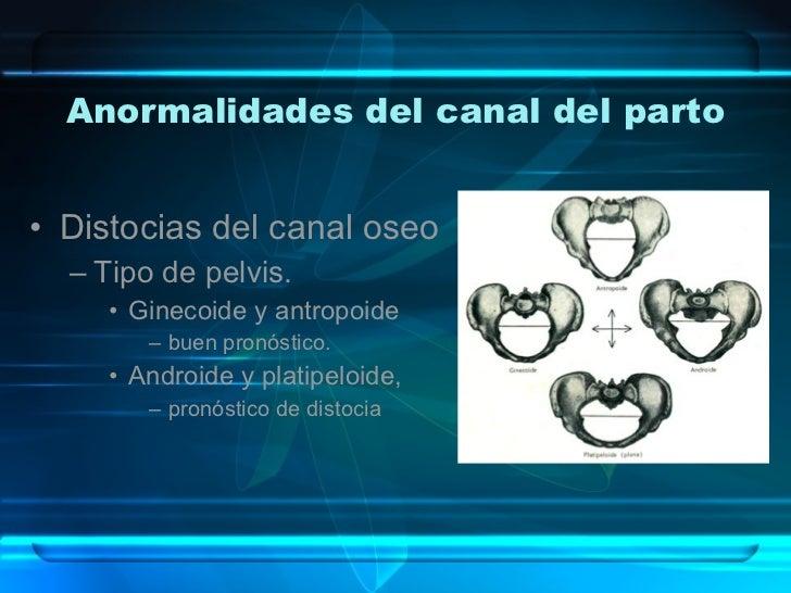 Anormalidades del canal del parto <ul><li>Distocias del canal oseo </li></ul><ul><ul><li>Tipo de pelvis. </li></ul></ul><u...