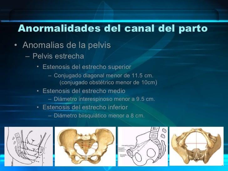 Anormalidades del canal del parto <ul><li>Anomalias de la pelvis </li></ul><ul><ul><li>Pelvis estrecha </li></ul></ul><ul>...