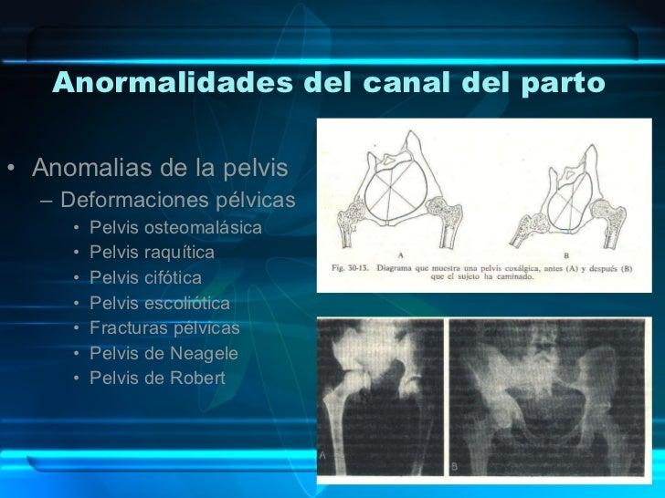 Anormalidades del canal del parto <ul><li>Anomalias de la pelvis </li></ul><ul><ul><li>Deformaciones pélvicas </li></ul></...