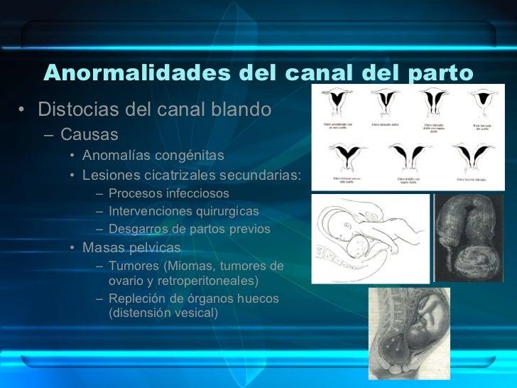 Anormalidades del canal del parto <ul><li>Distocias del canal blando </li></ul><ul><ul><li>Causas </li></ul></ul><ul><ul><...