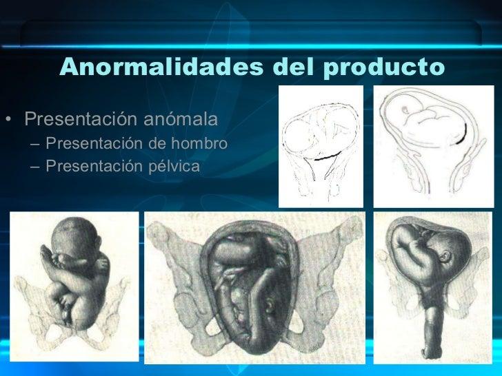 Anormalidades del producto <ul><li>Presentación anómala </li></ul><ul><ul><li>Presentación de hombro </li></ul></ul><ul><u...