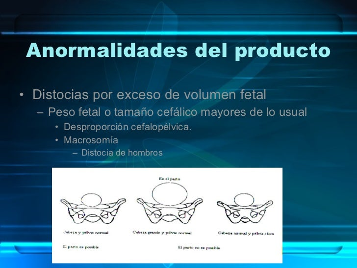 Anormalidades del producto <ul><li>Distocias por exceso de volumen fetal </li></ul><ul><ul><li>Peso fetal o tamaño cefálic...